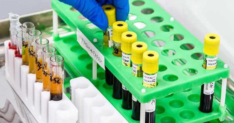 за последние сутки коронавирусом в Тюмени заболели 112 человек