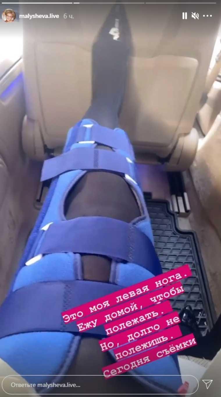 Телеведущая Малышева показала травмированную ногу